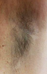 Underarm waxing BEFORE