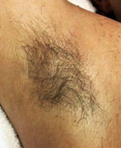 BEFORE Armpit waxing