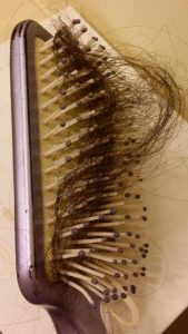 hair loss in brush