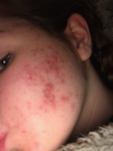 facial acne, cystic acne of teenager