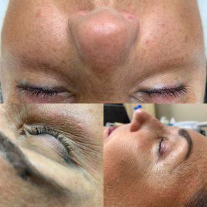 Before eyelash lift and tint