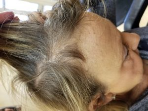thinning hair that has grown in