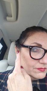 Hair breakage from glasses